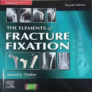 The Elements of Fracture Fixation